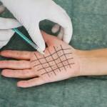 tratamiento hiperhidrosis Dra Villanueva